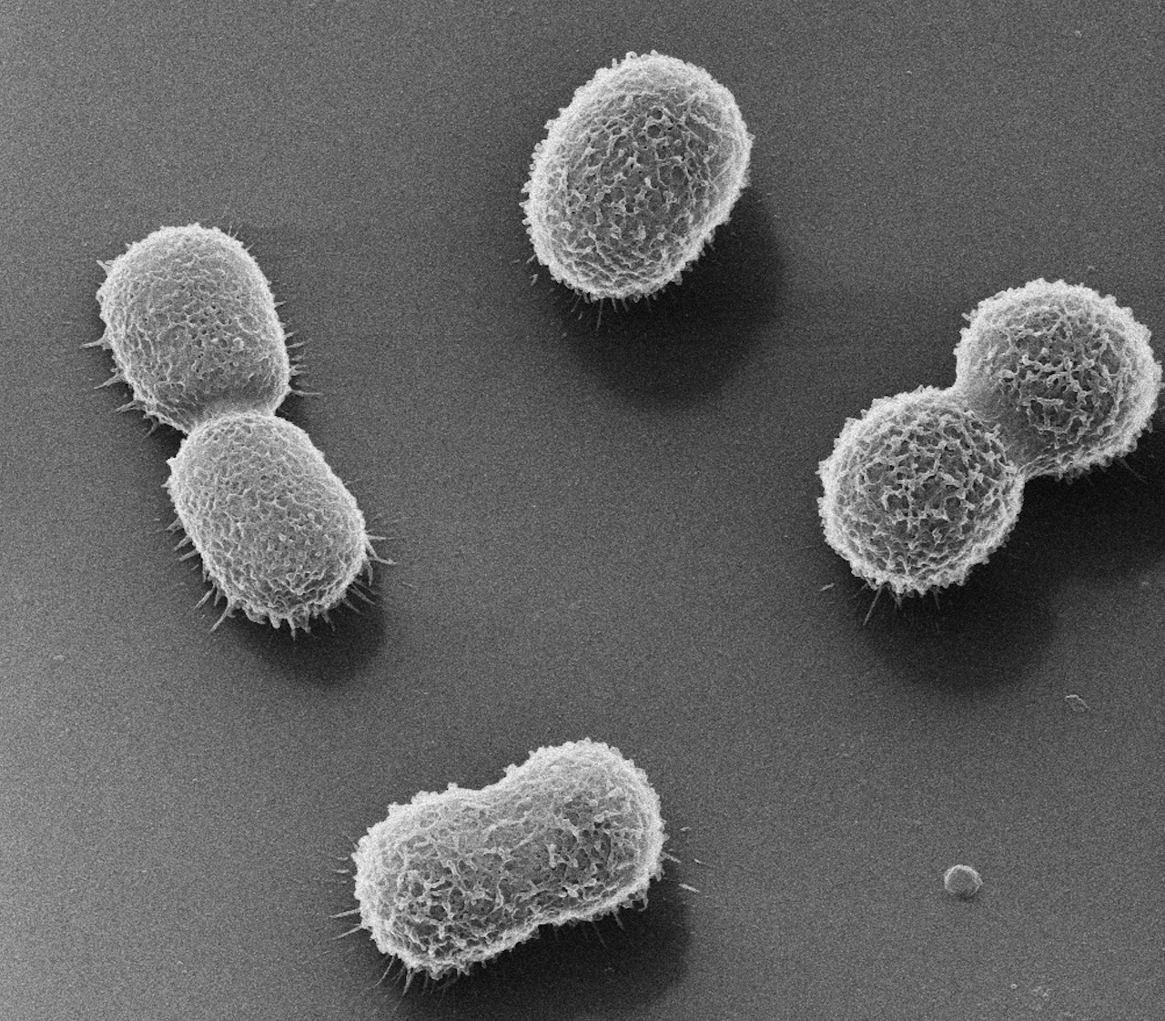 acinetobacter baumannii image � miphidic