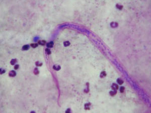"Higher resolution image of the tail of a second ""worm""."
