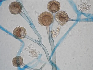 Microscope image of Rhizopus spp. (one of the causative agents of mucormycosis)