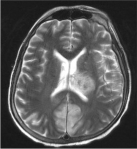 MRI of the brain (T2)