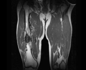 MRI of the femur showing (on the right femur) the changes of chronic osteomyelitis.