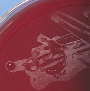 Blood agar plate showing very small microscopic whitish colonies.