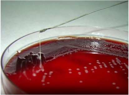 Klebsiella pneumoniae colony stretched >5 mm equates to a positive string test.