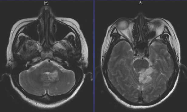 MRI brain showing brainstem and cerebellar infarcts.