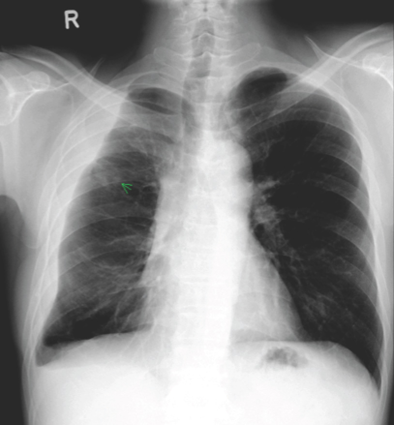 Clinical Vignette 27 | MIPHIDIC