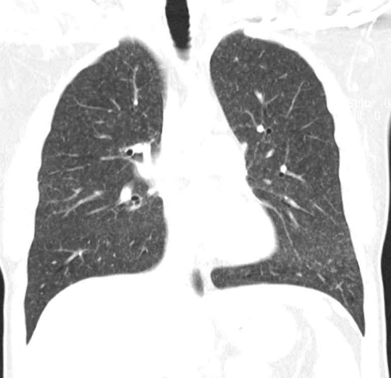 CT thorax (lung window) showing very small nodular shadows in both lung fields (coronal cut).