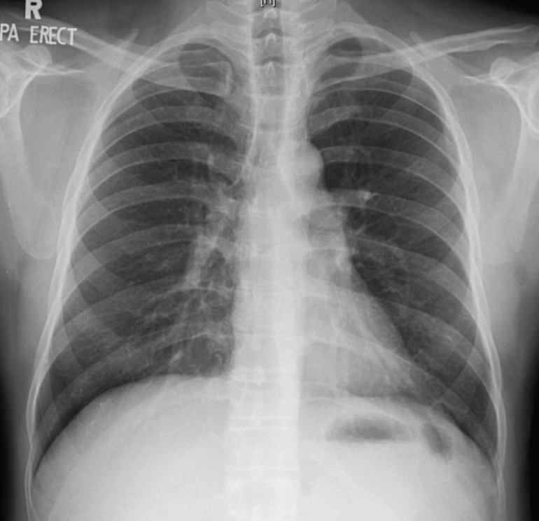 Chest X-ray of the middle-aged man with fever and cough for 2 weeks.