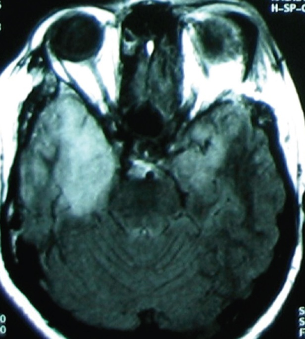 MRI (T2 image) of the woman with fever and impaired consciousness.