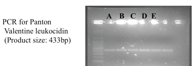 Gel electrophoresis showing positive PCR products for Panton-Valentine Leukocidin for the 5 initial CA-MRSA isolates in Singapore.