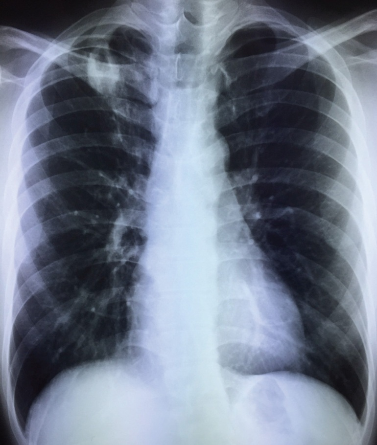 Chest X-ray of a young man, asymptomatic.