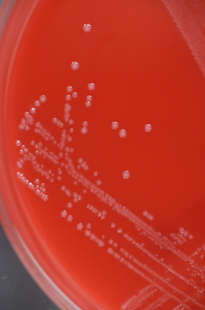 Streptococcus agalactiae  colonies on blood agar plate.