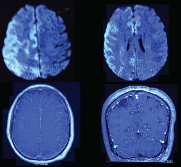 MRI images of the man with fever and left hemiparesis.