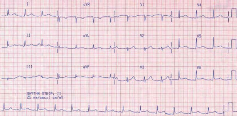 ECG of a middle-aged man with chest pain.