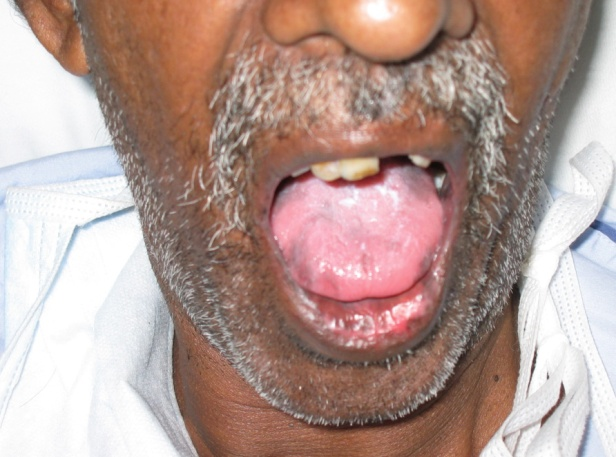 Tongue of the hypotensive patient.