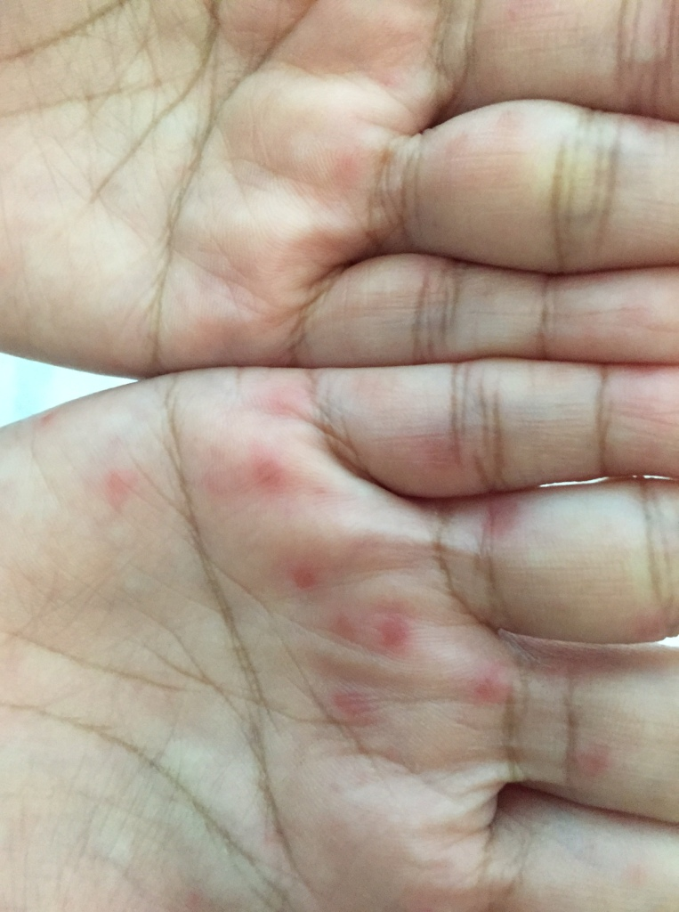 Lesions on the hands of a young pregnant woman.