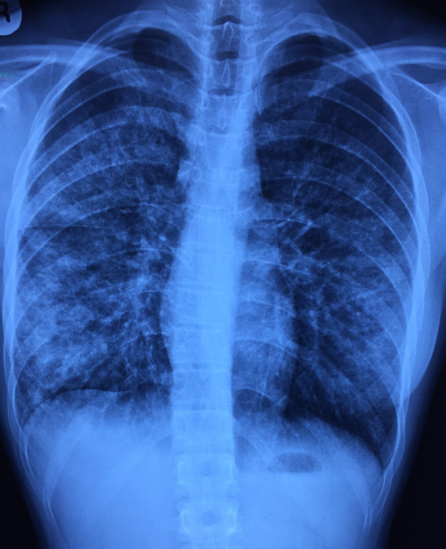 Chest X-ray of the teenager with acute onset of fever and cough.